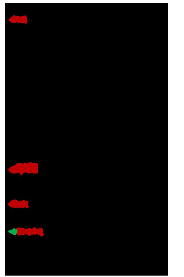 Gynaika-h-pagomenh-mpira-2